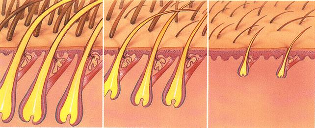 miniaturización-del-cabello